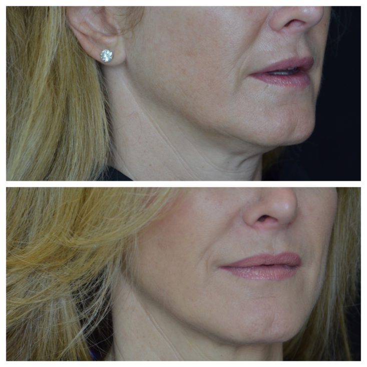results, skin care, Thermage, Dr. Lori Stetler, Dallas Center for Aesthetics and Dermatology, tanyafoster.com