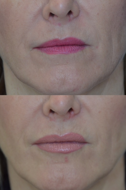 JUVÉDERM VOLBELLA lip injections before and after on Tanya Foster