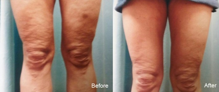 Dr. Mary Collings and AWT (Acoutsic Wave Therapy) for the reduction of cellulite