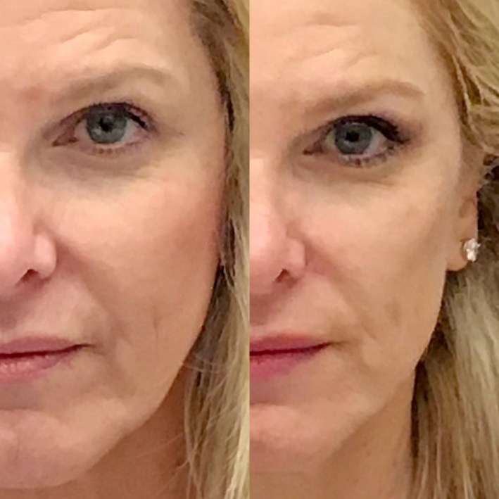 Forma Facial at Eleven Wellness spa featured by top US beauty blogger, Tanya Foster: before and after pictures