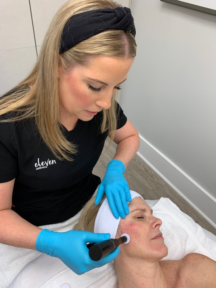 Should You Consider Procell Microchanneling? | Should You Consider ProCell Microchanneling? +Eleven Wellness Giveaway! by popular Dallas beauty blogger, Tanya Foster: image of a woman laying down on a body length spa table and getting Procell Microchanneling done on her face.