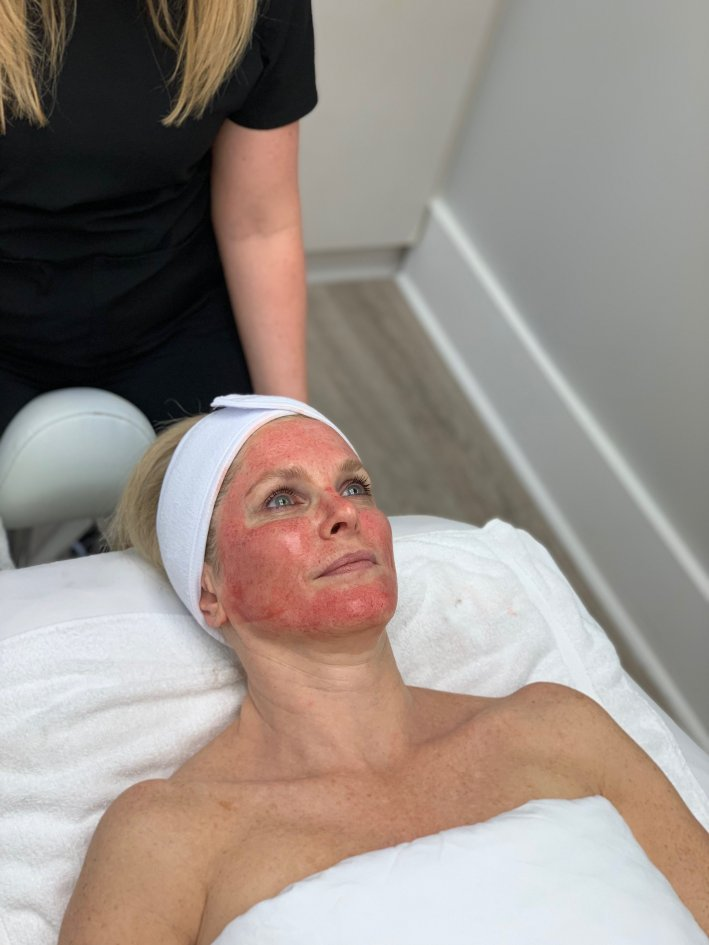 Should You Consider Procell Microchanneling?   Should You Consider ProCell Microchanneling? +Eleven Wellness Giveaway! by popular Dallas beauty blogger, Tanya Foster: image of a woman laying down on a body length spa table and getting Procell Microchanneling done on her face.