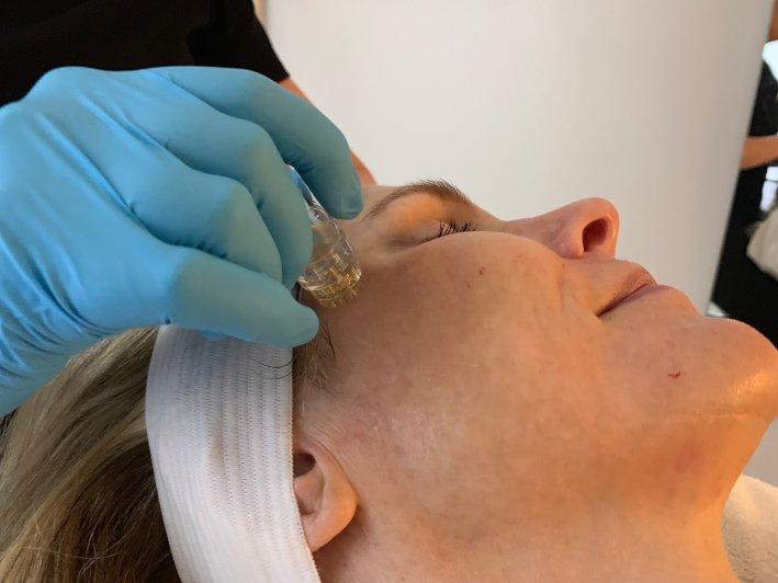 Aquagold Facial at Eleven Wellness