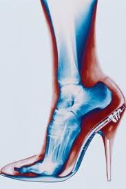 X-Ray of foot in high heels. Free your feet.
