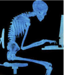 X-Ray of person hunched in front of computer. it's because i'm getting old.