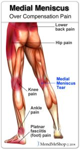 medial-meniscus-over-compensation-pain Injury Update