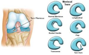 meniscus tear type - Injury setback opportunity