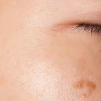 【健康保険適用】気になる「しみ」は皮膚科で