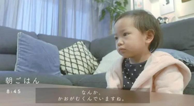 せんちゃん(カジサック子供)髪の毛が薄いのは病気