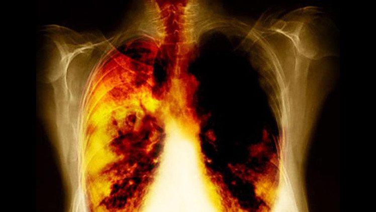 العلماء يكتشفون كيفية انتشار خلايا سرطان الرئة في الجسم