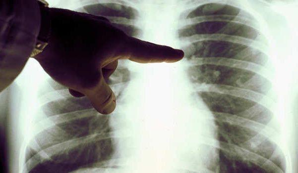 هل يسبب انخفاض معدل التدخين بزيادة معدل الوفاة نتيجة سرطان الرئة؟