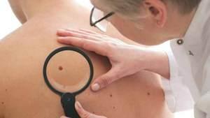 الشامات قد تتحول الى سرطان الجلد