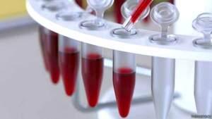 فحص دم جديد يمكنه الإنذار بانتكاس مرضى السرطان