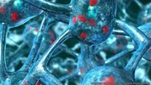 """خلايا محددة """"تحترق"""" في مخ المصاب بمرض الشلل الرعاش"""