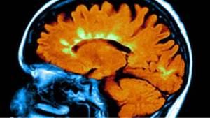 يسبب مرض التصلب المتعدد ضررا في أعصاب المخ (المبينة باللون الأخضر)