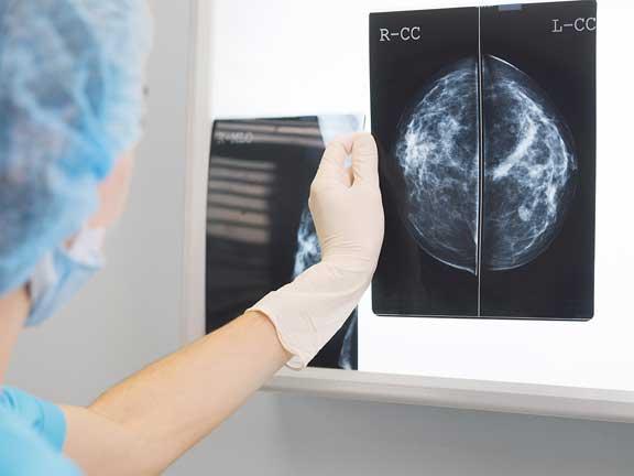 التدخين وجين سرطان الثدي يزيدان من احتمالات الإصابة بسرطان الرئة