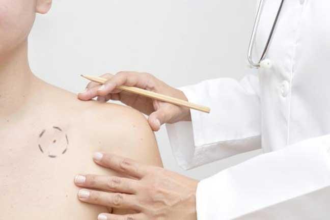 ارتفاع الإصابة بسرطان الجلد منذ سبعينيات القرن الماضي