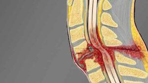 العلماء يتوصلون الى طريقة لعلاج اصابات النخاع الشوكي