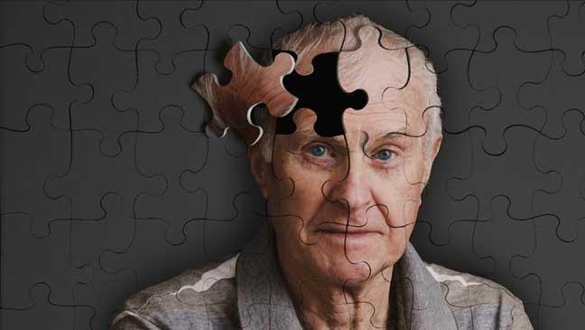 علماء روس يكتشفون طريقة جديدة مبدئيا لعلاج مرض الزهايمر
