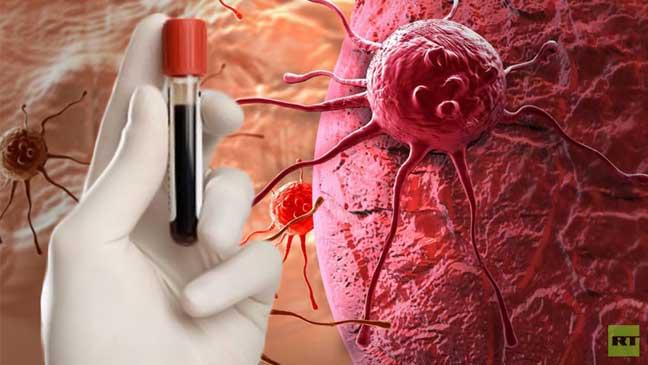 علماء روس يطورون تقنية جديدة لتشخيص مبكر للسرطان عن طريق فحص الدم