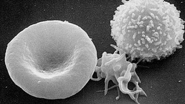 المناعة طريقة جديدة لمكافحة السرطان