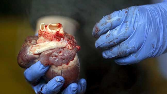 دراسة: الموت بسبب انكسار القلب ممكن