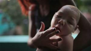 فيروس زيكا يصغّر رأس المولود