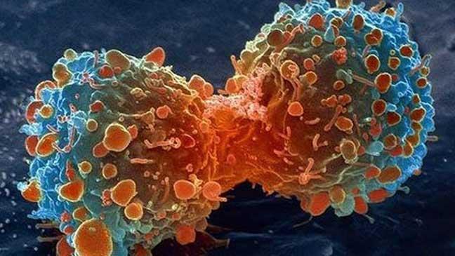 12 خطوة لتجنب الإصابة بالسرطان