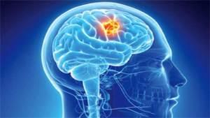 التعليم الجامعي قد يسبب الإصابة بسرطان الدماغ