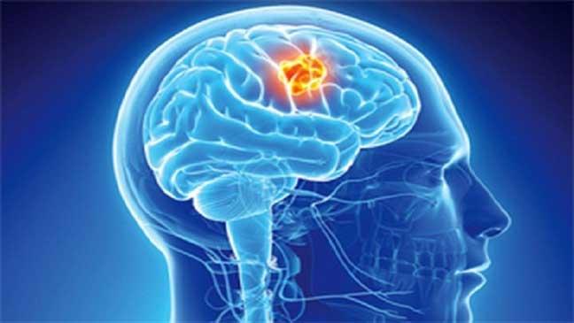 دراسة: التعليم الجامعي قد يسبب الإصابة بسرطان الدماغ