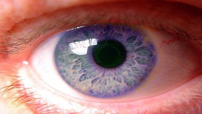 العلماء يتوصلون إلى دواء لسرطان العين