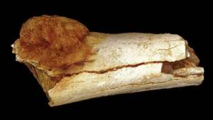 السرطان رافق الإنسان منذ أكثر من مليون عام