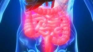 اختلال التوازن في بكتيريا الأمعاء يؤدي إلى الإصابة بالسكري