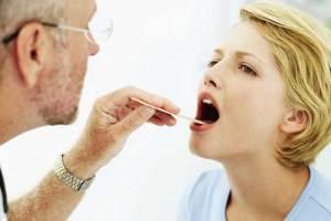 قرحة الفم و كيفية العلاج