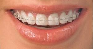 تقويم الأسنان .. هل يفيد الكبار والبالغين؟؟