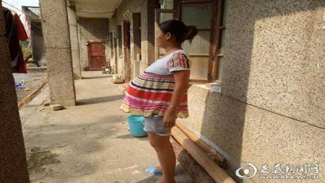 امرأة صينية تحمل جنينها 17 شهرا