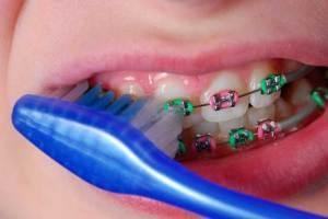 نظفوا أسنانكم رغم التقويم
