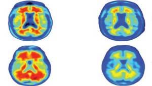 العلماء يتوصلون لعلاج جديد لمرض الزهايمر