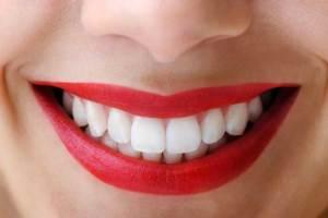 خلطة سحرية لتبييض أسنانك خلال ساعة فقط