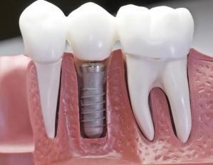 ألف باء سلسلة زرع الأسنان