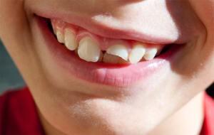 ما الذي ينبغي عليك فعله عندما يسقط أو ينكسر أحد أسنانك؟