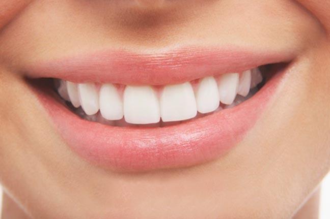 ابتعدي عن هذه الأطعمة لحماية أسنانك من الاصفرار