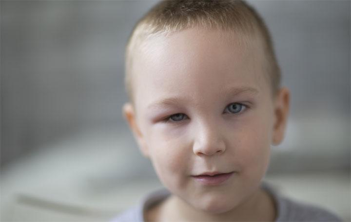 أسباب تورم العين المفاجئ عند الأطفال