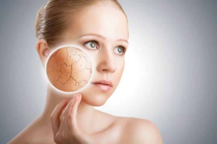 أسباب قد لا تعرفها عن جفاف بشرتك