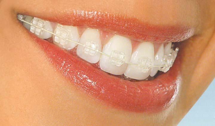 بمَ يختلف تقويم الأسنان الشفاف؟