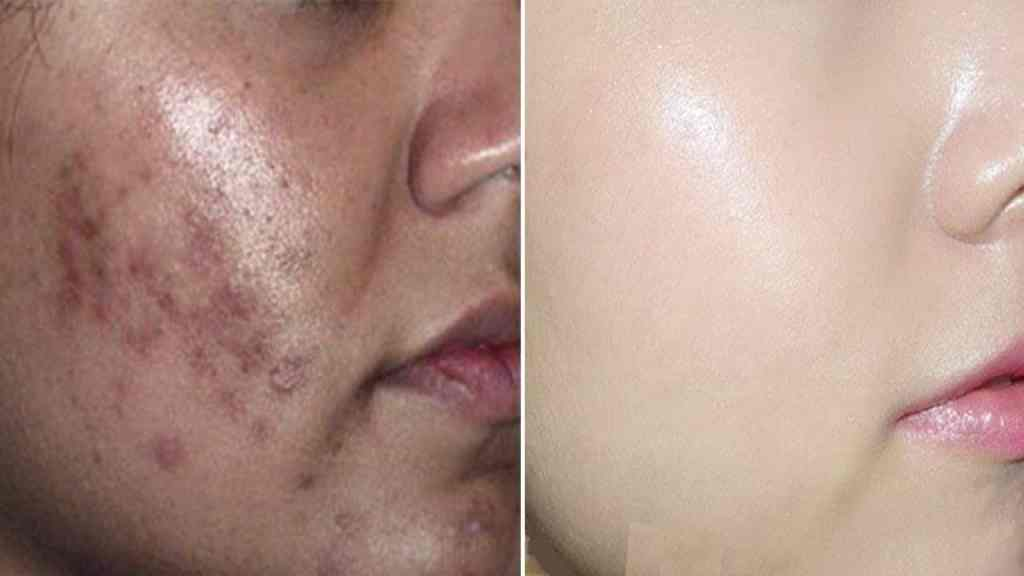 Natural Tips To Get Rid of Dark Spots on the Face