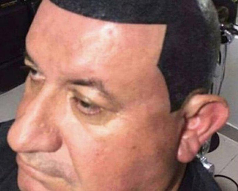 hairline tattoo fail