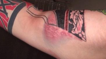 , 6 étapes pour traiter un tatouage infecté – Prenez en considération (2019)  (En images)
