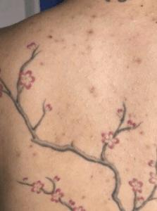 tatouage d'acné