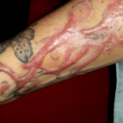 tattoo removal scars